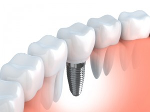 drawing of a dental implant in place