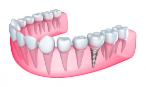 Worcester dental implants from Handsman & Haddad Periodontics