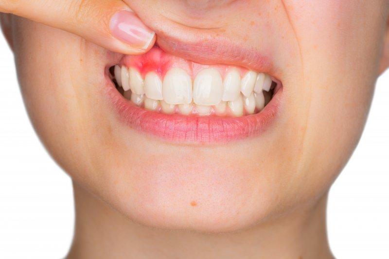 an up-close look at a person pulling their top lip up to expose their red, swollen gums