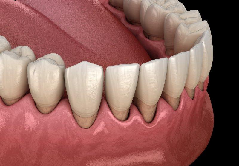 a digital image of gums receding as a result of periodontal disease