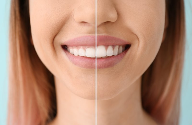 a side-by-side image of a woman's smile before and after gum recontouring